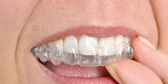 Invisalign ClearCorrect Clear Brackets Six Month Smiles