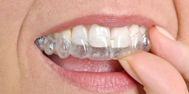 clear aligners, straighten teeth, clear ortho,