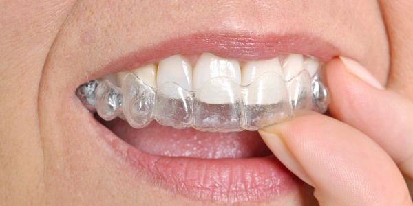 Clear aligners straighten teenth with from mild to moderate mis-alignment.  Custom fit for you mouth