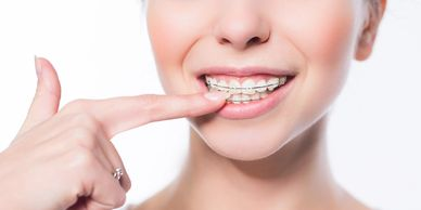 Orthodontic treatment with braces by an orthodontist in an orthodontic clinic