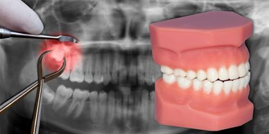 oral surgery in cranberry township