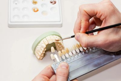 Every crown, veneer, bridge and partial is custom made to look and feel natural for every patient.