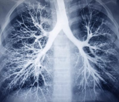 mesothelioma, lung cancer, asbestosis, xray of lungs