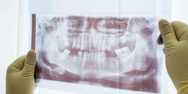 tooth removal, 3D scan, dental implants, missing teeth,root canals, dentures, bridges,bone,surgery