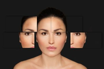 Anti-aging, youth -- asianskin-hispanicskin-caucasian- microcurrent-facialmasks-botox-lifting-cosmo