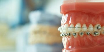 Dentures,Bluff Point Dental,bluff point geraldton,dentist geraldton wa,bluffpointdental