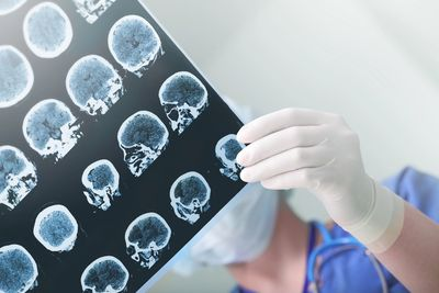 Traumatic brain injuries can be difficult to detect.