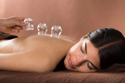 Woman with cupping therapy