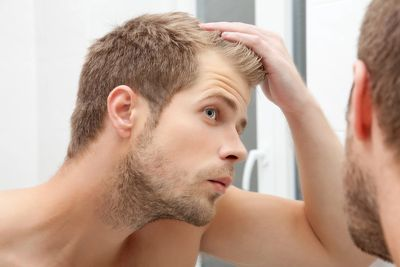 Man with early hair loss