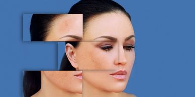 Hyperpigmentation treatment in London