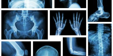Multiple Xray photos of person injured.