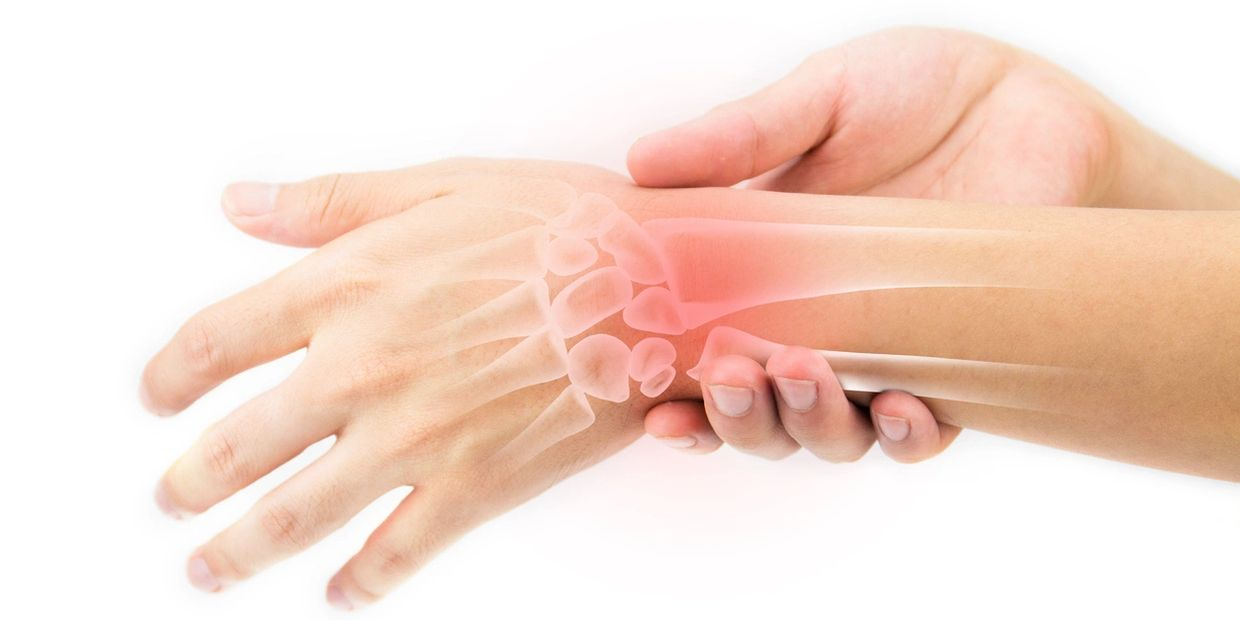Carpal tunnel physio physiotherapy rehab physiotherapist waterloo