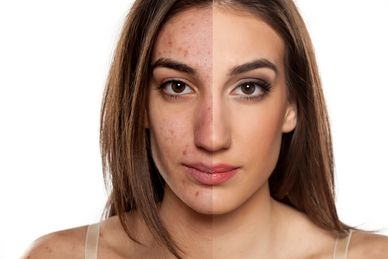 Acne affects both men and women at some point in their adult lives. Let us help.