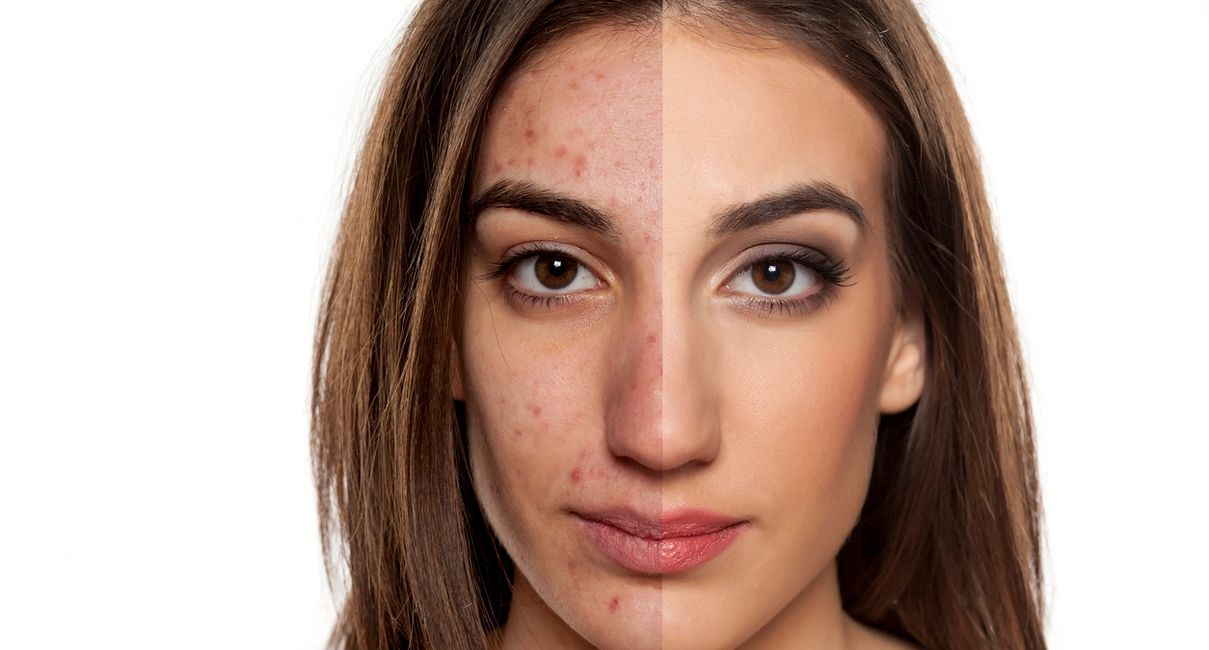 Acne is a skin condition characterised by red pimples on the skin, especially on the face, due to in